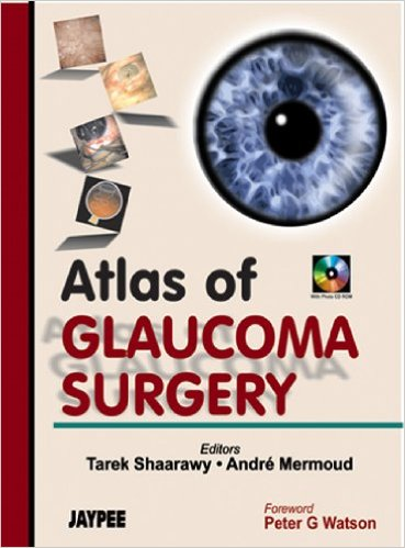 Atlas of Glaucoma surgery