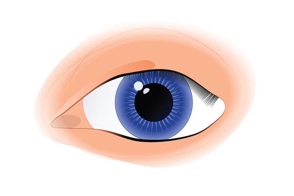 Cataract Treatment 1