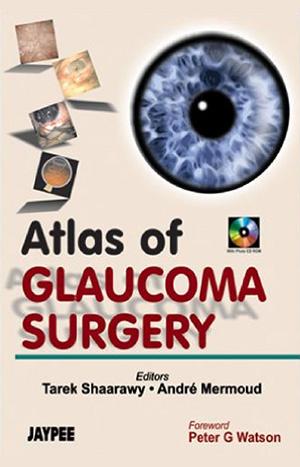 Atlas of Glaucoma Surgery